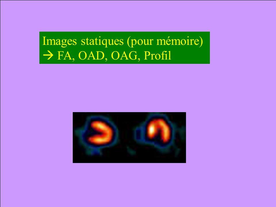 Images statiques (pour mémoire) FA, OAD, OAG, Profil