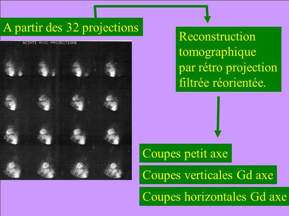 A partir des 32 projections Coupes petit axe Coupes verticales Gd axe Coupes horizontales Gd axe Reconstruction tomographique par rétro projection fil