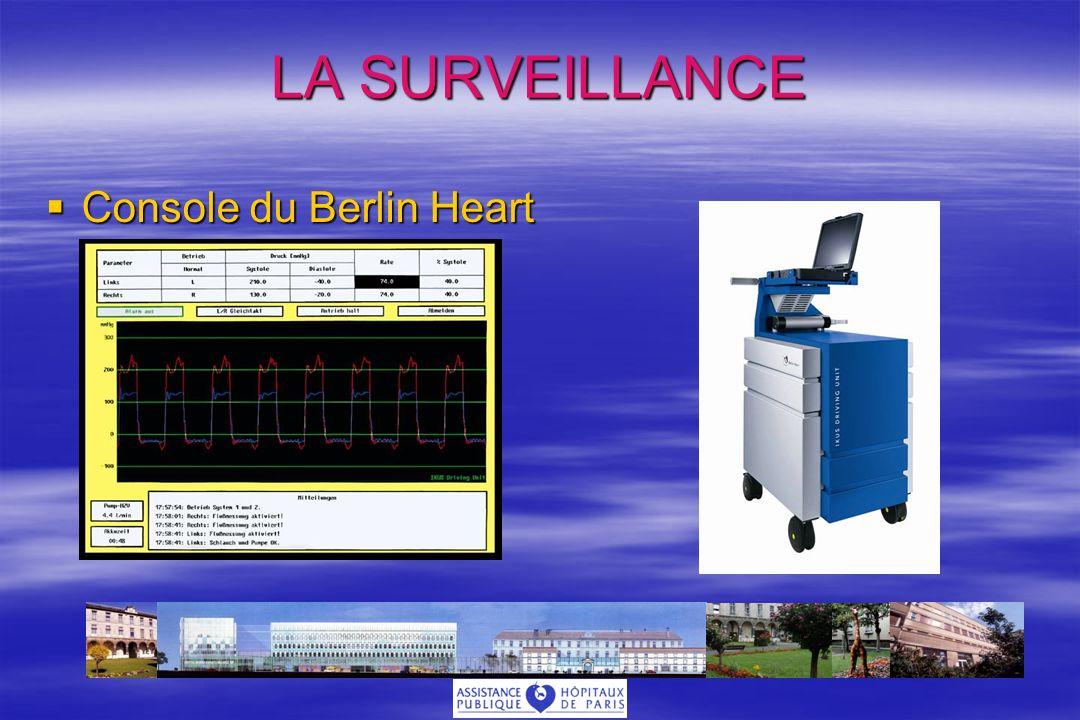 LA SURVEILLANCE Console du Berlin Heart Console du Berlin Heart