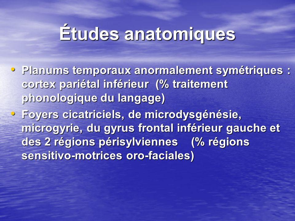 Planums temporaux anormalement symétriques : cortex pariétal inférieur (% traitement phonologique du langage) Planums temporaux anormalement symétriqu