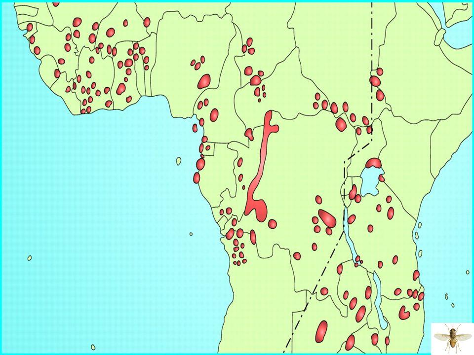 4 Parasitose provoquée par des protozoaires flagellés sanguicoles: Parasitose provoquée par des protozoaires flagellés sanguicoles: Trypanosoma brucei gambiense (Afrique de lOuest) Trypanosoma brucei gambiense (Afrique de lOuest) T.