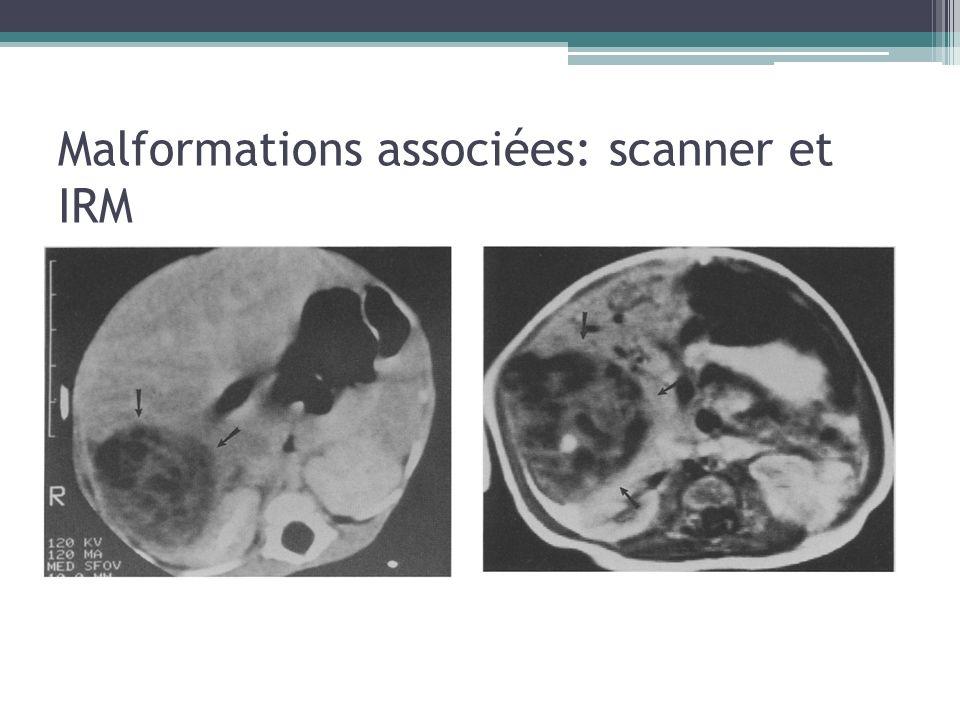 Malformations associées: scanner et IRM