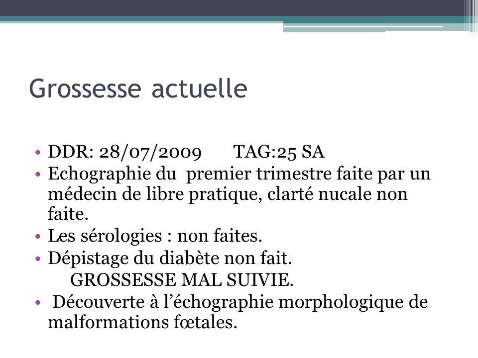 Grossesse actuelle DDR: 28/07/2009 TAG:25 SA Echographie du premier trimestre faite par un médecin de libre pratique, clarté nucale non faite. Les sér