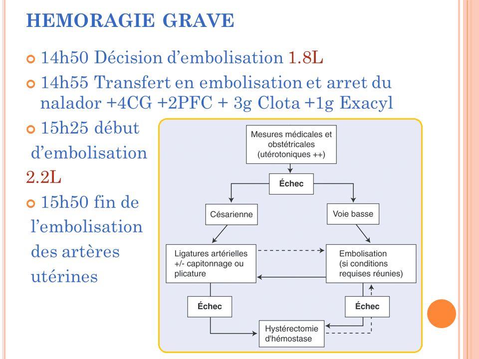 14h50 Décision dembolisation 1.8L 14h55 Transfert en embolisation et arret du nalador +4CG +2PFC + 3g Clota +1g Exacyl 15h25 début dembolisation 2.2L 15h50 fin de lembolisation des artères utérines HEMORAGIE GRAVE