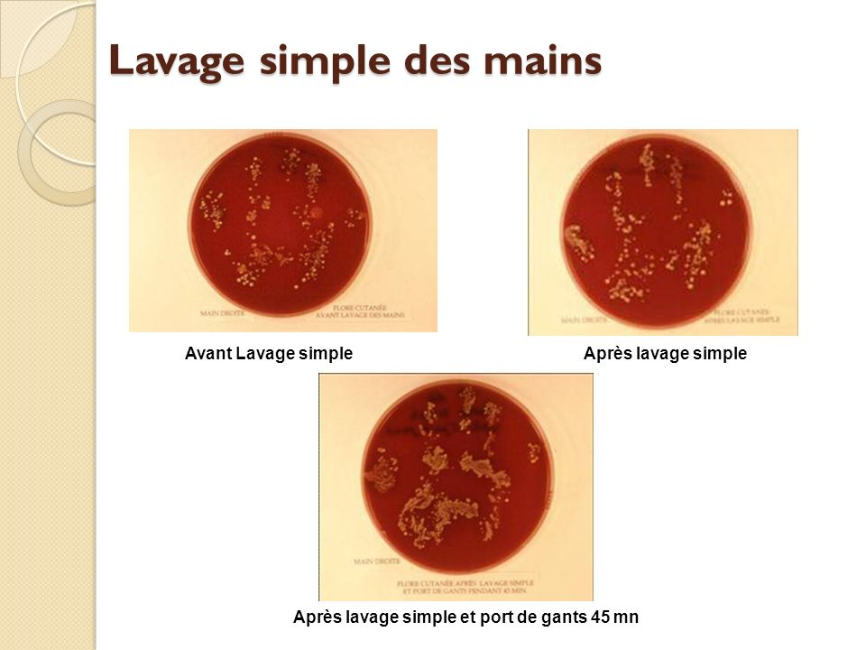 Lavage simple des mains Avant Lavage simpleAprès lavage simple Après lavage simple et port de gants 45 mn