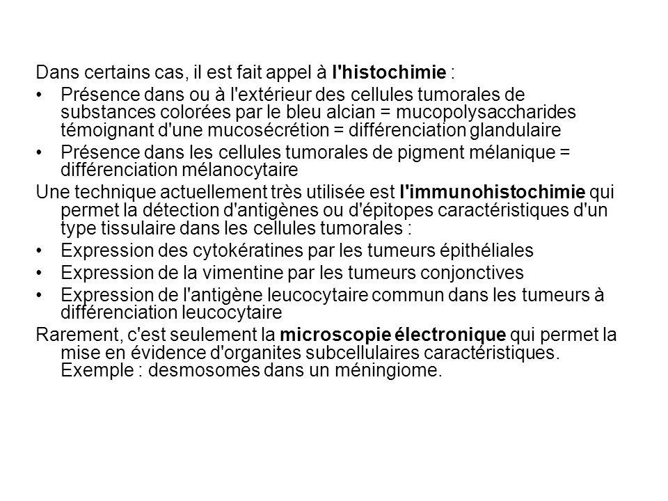 Dans certains cas, il est fait appel à l histochimie : Présence dans ou à l extérieur des cellules tumorales de substances colorées par le bleu alcian = mucopolysaccharides témoignant d une mucosécrétion = différenciation glandulaire Présence dans les cellules tumorales de pigment mélanique = différenciation mélanocytaire Une technique actuellement très utilisée est l immunohistochimie qui permet la détection d antigènes ou d épitopes caractéristiques d un type tissulaire dans les cellules tumorales : Expression des cytokératines par les tumeurs épithéliales Expression de la vimentine par les tumeurs conjonctives Expression de l antigène leucocytaire commun dans les tumeurs à différenciation leucocytaire Rarement, c est seulement la microscopie électronique qui permet la mise en évidence d organites subcellulaires caractéristiques.