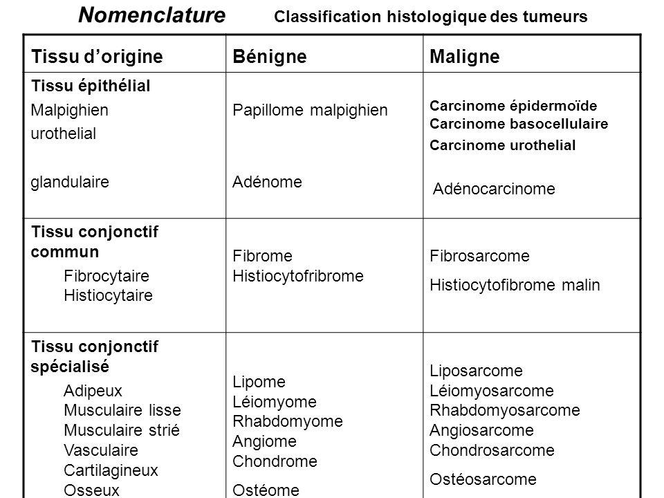 Nomenclature Classification histologique des tumeurs Tissu dorigineBénigneMaligne Tissu épithélial Malpighien urothelial glandulaire Papillome malpighien Adénome Carcinome épidermoïde Carcinome basocellulaire Carcinome urothelial Adénocarcinome Tissu conjonctif commun Fibrocytaire Histiocytaire Fibrome Histiocytofribrome Fibrosarcome Histiocytofibrome malin Tissu conjonctif spécialisé Adipeux Musculaire lisse Musculaire strié Vasculaire Cartilagineux Osseux Lipome Léiomyome Rhabdomyome Angiome Chondrome Ostéome Liposarcome Léiomyosarcome Rhabdomyosarcome Angiosarcome Chondrosarcome Ostéosarcome