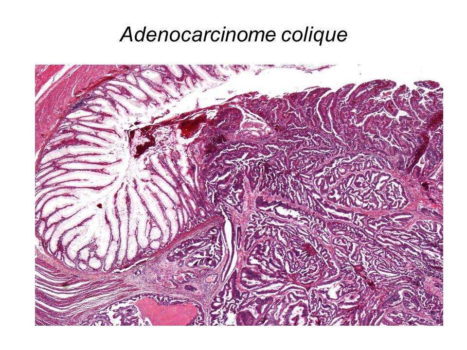 Adenocarcinome colique