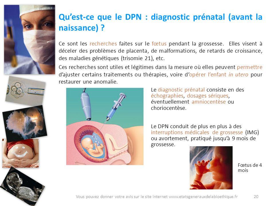 Quest-ce que le DPN : diagnostic prénatal (avant la naissance) ? Ce sont les recherches faites sur le fœtus pendant la grossesse. Elles visent à décel