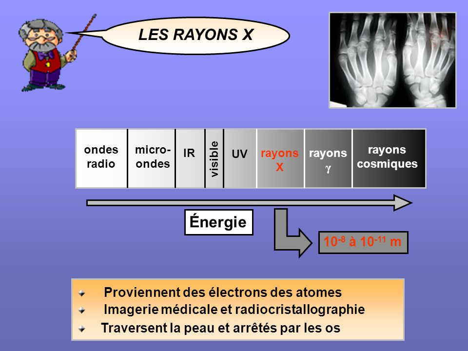 LES RAYONS X Proviennent des électrons des atomes Imagerie médicale et radiocristallographie Traversent la peau et arrêtés par les os visible rayons c