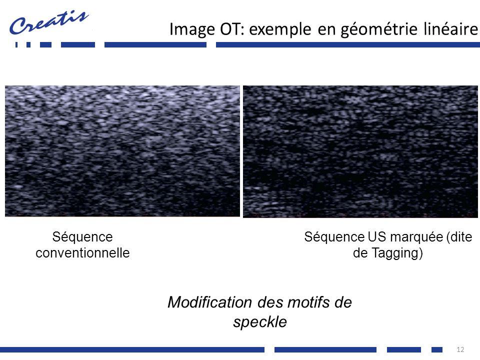 12 Modification des motifs de speckle Séquence conventionnelle Séquence US marquée (dite de Tagging)