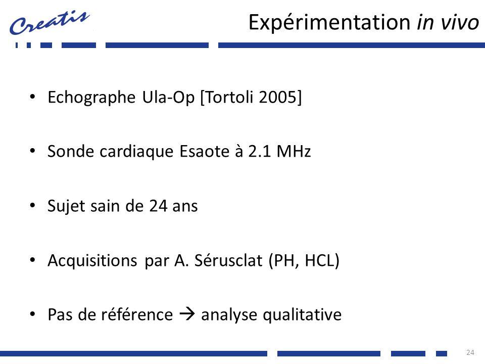 Expérimentation in vivo Echographe Ula-Op [Tortoli 2005] Sonde cardiaque Esaote à 2.1 MHz Sujet sain de 24 ans Acquisitions par A. Sérusclat (PH, HCL)