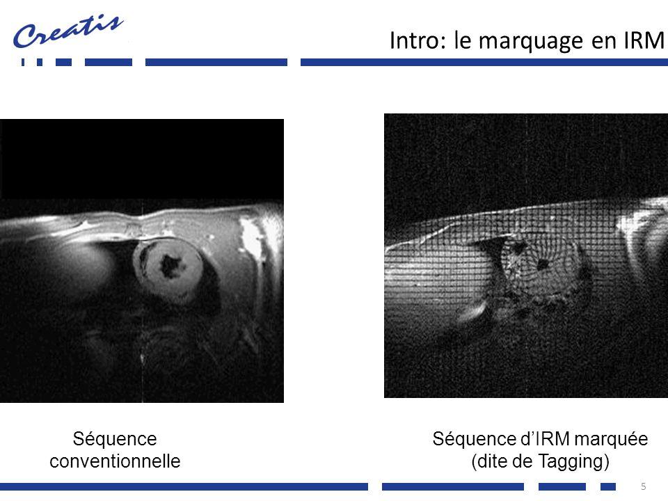 Simulations en échocardiographie 16 Modèle de ventricule gauche pendant un cycle cardiaque complet Evolution temporelle réaliste : volume et torsion [Arts et al.