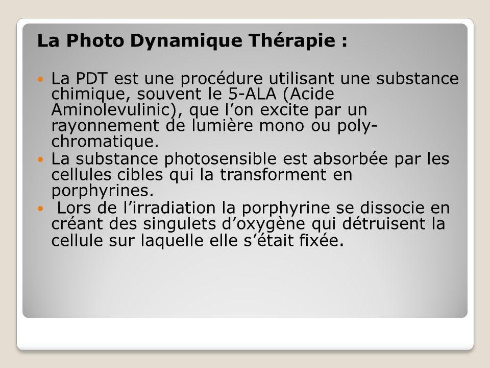 La Photo Dynamique Thérapie : La PDT est une procédure utilisant une substance chimique, souvent le 5-ALA (Acide Aminolevulinic), que lon excite par u