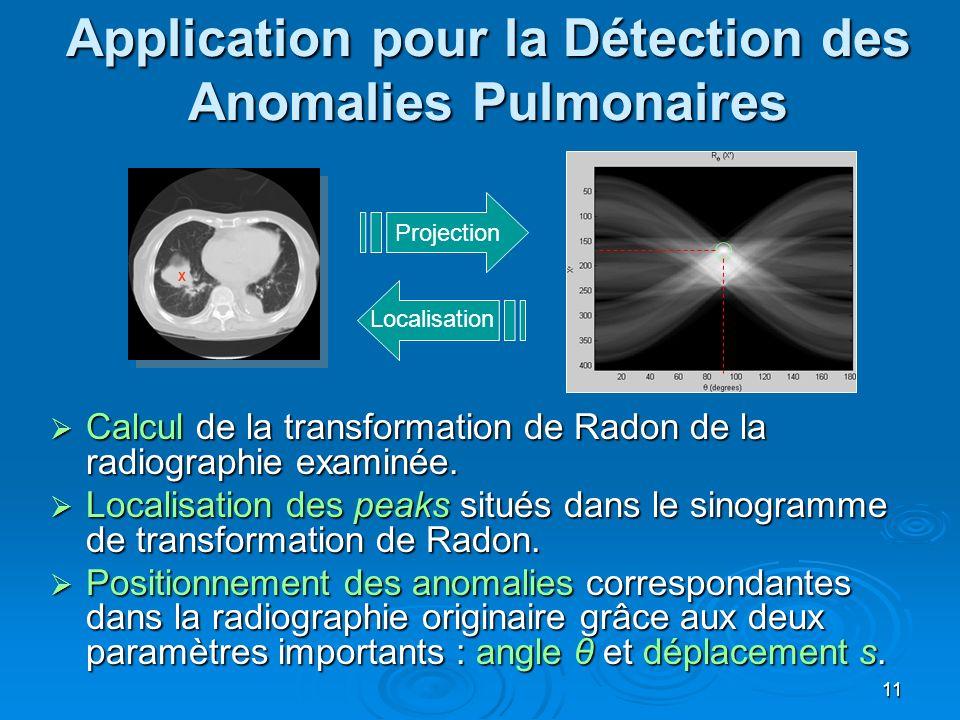 11 Application pour la Détection des Anomalies Pulmonaires Projection X Localisation Calcul de la transformation de Radon de la radiographie examinée.