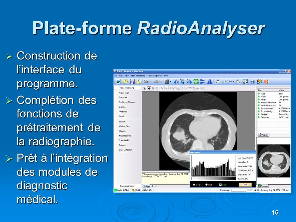 15 Plate-forme RadioAnalyser Construction de linterface du programme. Construction de linterface du programme. Complétion des fonctions de prétraiteme