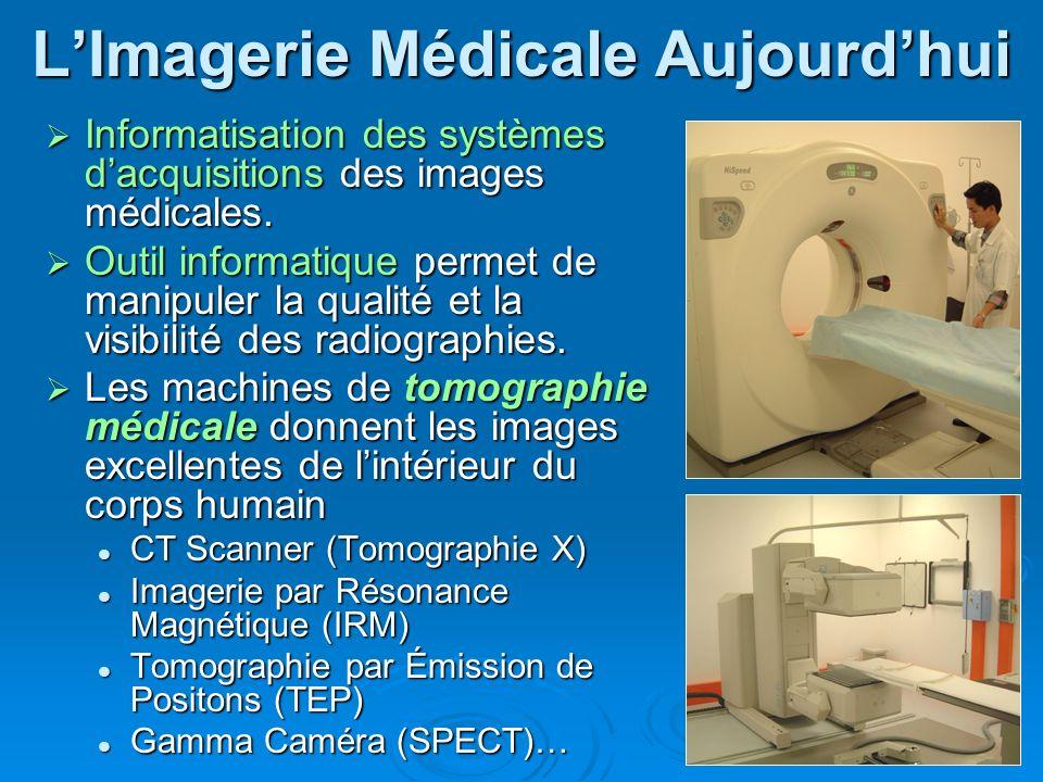 2 LImagerie Médicale Aujourdhui Informatisation des systèmes dacquisitions des images médicales. Informatisation des systèmes dacquisitions des images