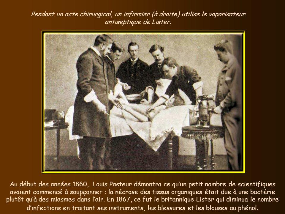 En 1866, le Suédois Alfred Nobel créa le premier explosif brisant : la dynamite. Le nombre de bâtons de dynamite utilisés détermine la force de lexplo
