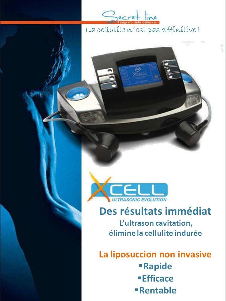 La cellulite n est pas définitive ! Des résultats immédiat Lultrason cavitation, élimine la cellulite indurée La liposuccion non invasive Rapide Effic
