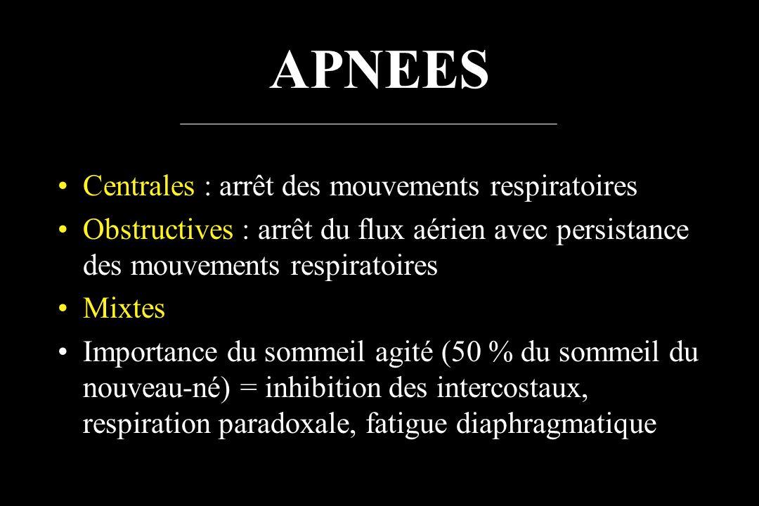 APNEES Centrales : arrêt des mouvements respiratoires Obstructives : arrêt du flux aérien avec persistance des mouvements respiratoires Mixtes Importa