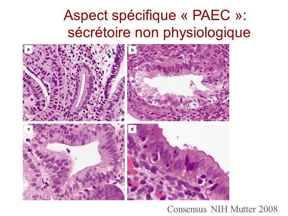 Consensus NIH Mutter 2008 Aspect spécifique « PAEC »: sécrétoire non physiologique