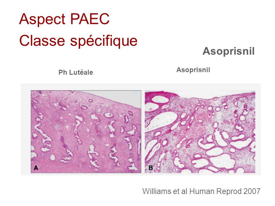 Aspect PAEC Classe spécifique Asoprisnil Ph Lutéale Asoprisnil Williams et al Human Reprod 2007