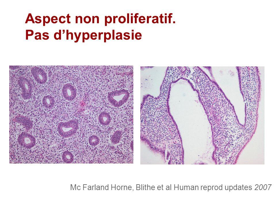 Mc Farland Horne, Blithe et al Human reprod updates 2007 Aspect non proliferatif. Pas dhyperplasie