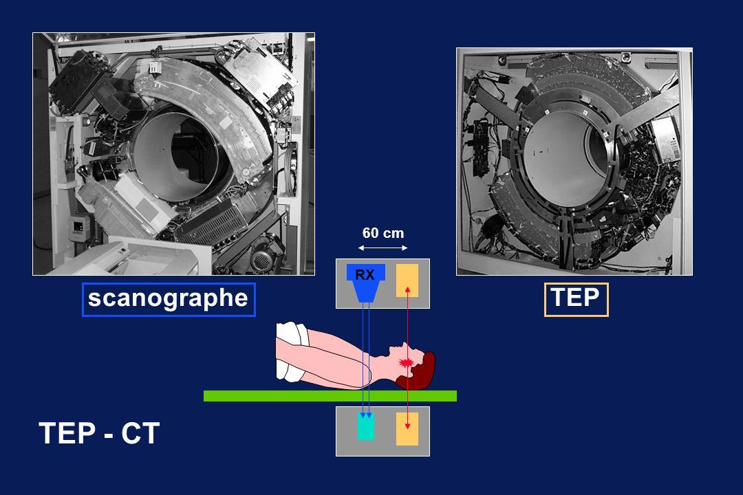 RX TEP - CT scanographeTEP 60 cm