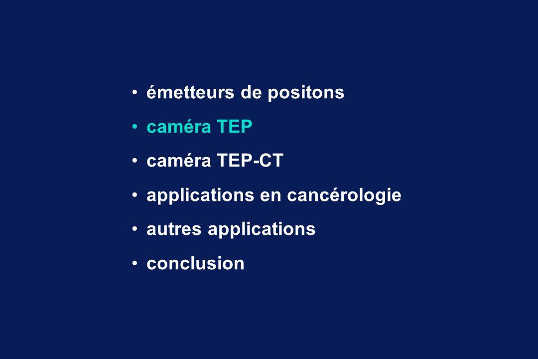 TEP - CT : fusion des images ScanTEPTEP - CT +=