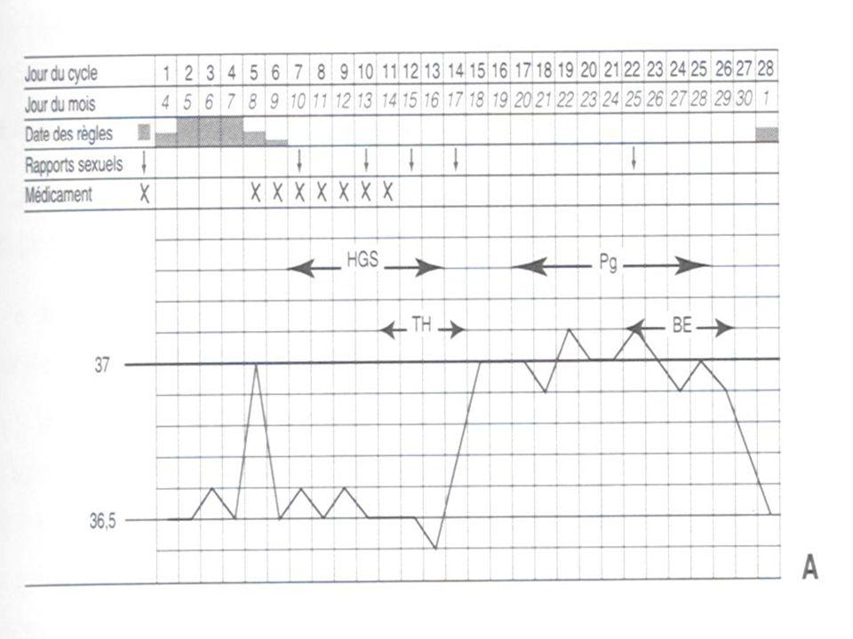 DOSAGES HORMONAUX à J3 FSH (entre 1 et 6 mUI/ml) : élevée en cas dinsuffisance ovarienne débutante, LH (entre 1 et 6 mUI/ml) : élevée en cas dOPK, Estradiol (< 80 pg/ml) : élevé en cas de kyste ou dinsuffisance ovarienne débutante, Inhibine B (> 45 ng/ml) : basse en cas dinsuffisance ovarienne débutante, AMH (> 2 ng/ml) : basse en cas dinsuffisance ovarienne débutante, Prolactine (< 20 pg/ml) : élevée en cas de prise médicamenteuse ou dadénome hypophysaire Testostérone (<0,6 ng/ml) et delta-4 androstènedione (<2,5 ng/ml) : élevées en cas dOPK ou dhyperandrogénie dorigine ovarienne