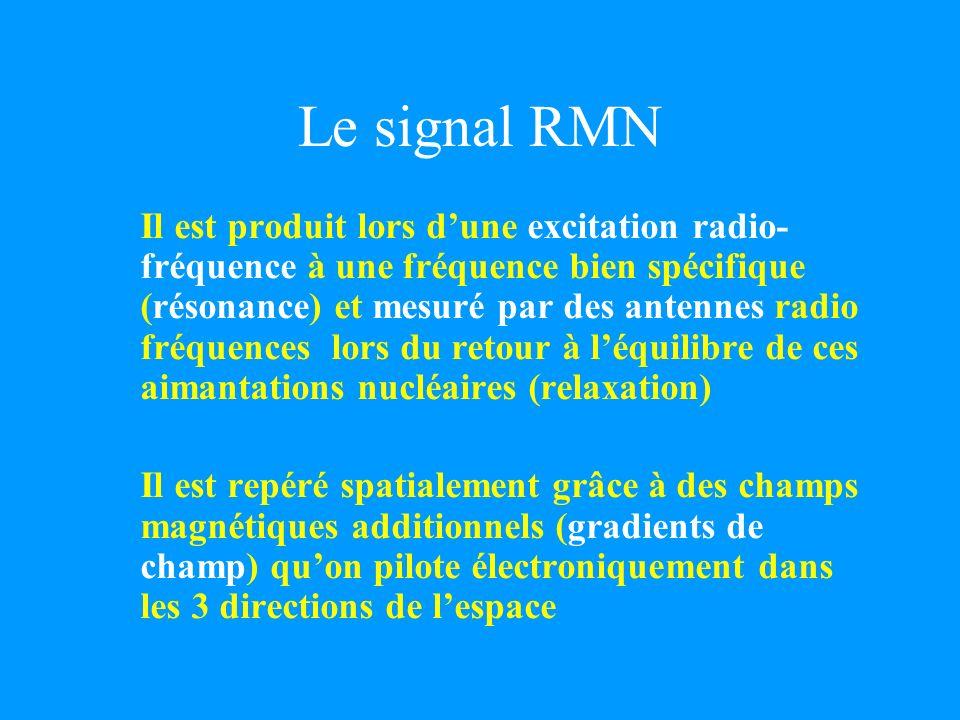 Le signal RMN Il est produit lors dune excitation radio- fréquence à une fréquence bien spécifique (résonance) et mesuré par des antennes radio fréque