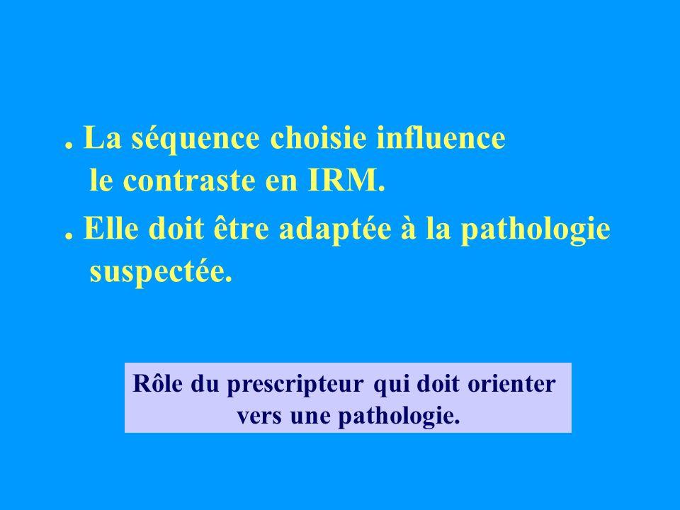 . La séquence choisie influence le contraste en IRM.. Elle doit être adaptée à la pathologie suspectée. Rôle du prescripteur qui doit orienter vers un