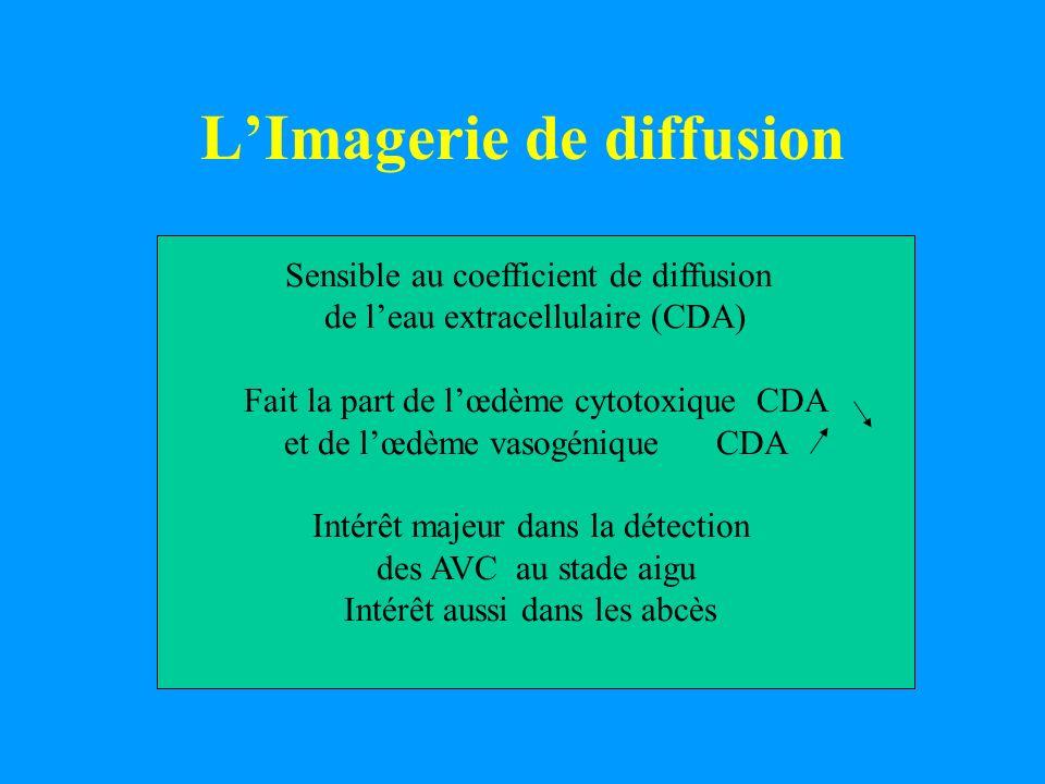 LImagerie de diffusion Sensible au coefficient de diffusion de leau extracellulaire (CDA) Fait la part de lœdème cytotoxique CDA et de lœdème vasogéni