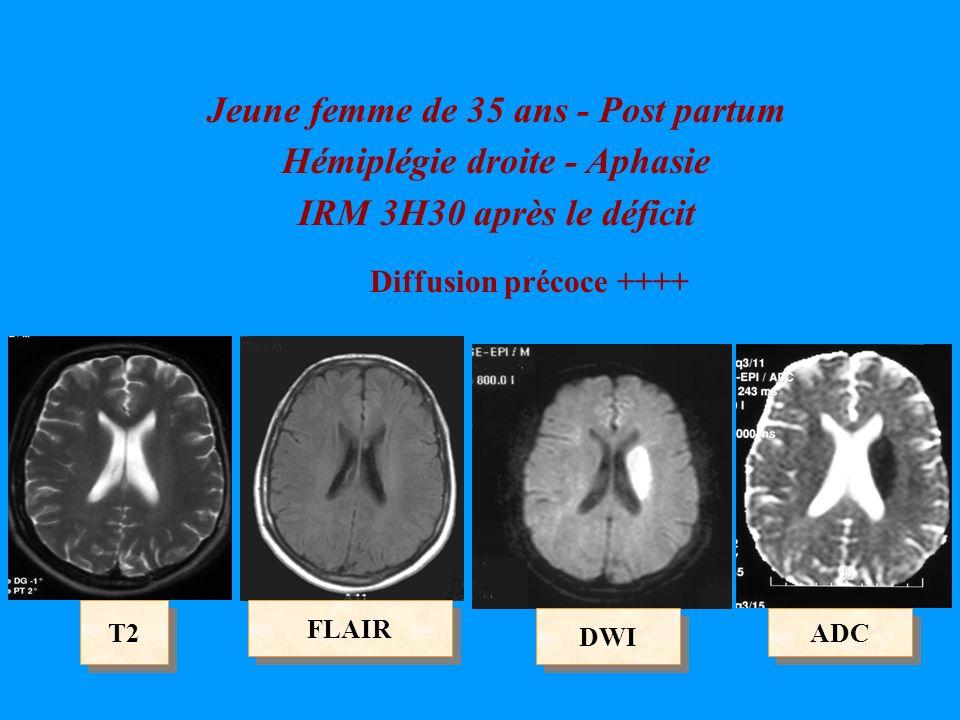 DWI ADC FLAIR T2 Jeune femme de 35 ans - Post partum Hémiplégie droite - Aphasie IRM 3H30 après le déficit Diffusion précoce ++++