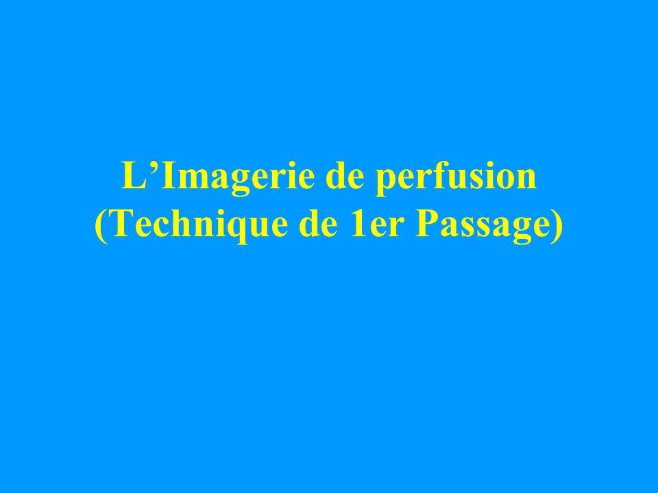 LImagerie de perfusion (Technique de 1er Passage)