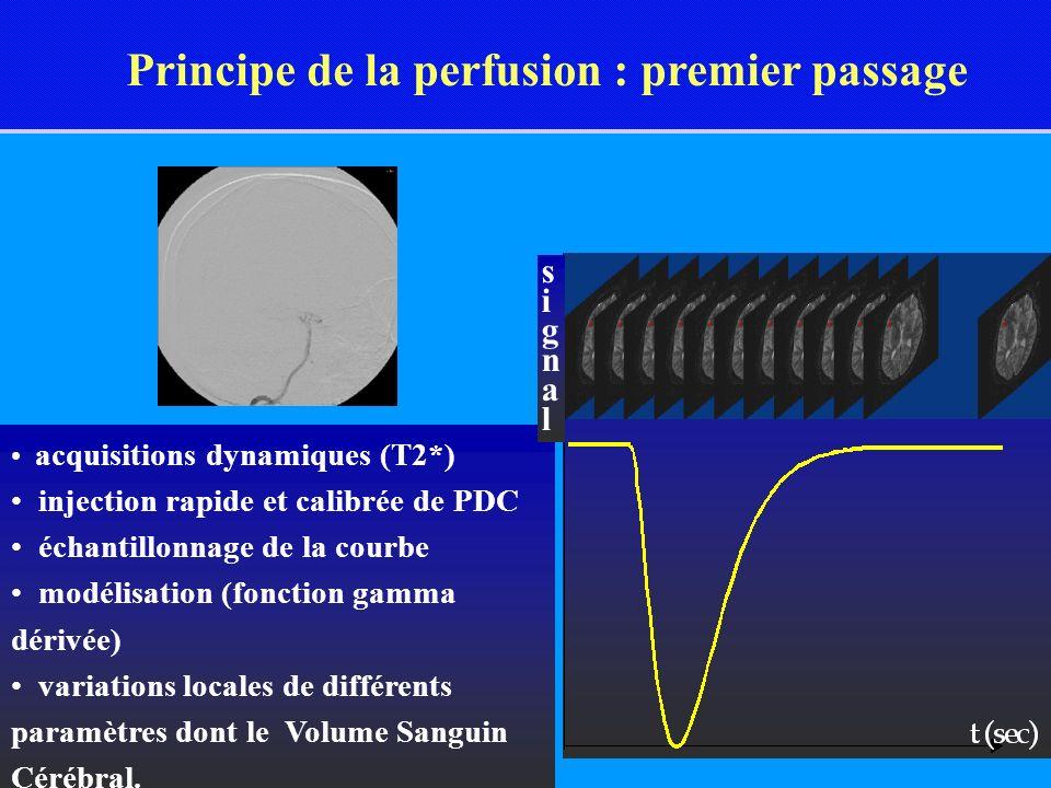 Principe de la perfusion : premier passage acquisitions dynamiques (T2*) injection rapide et calibrée de PDC échantillonnage de la courbe modélisation