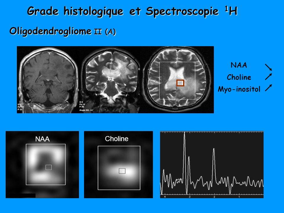Grade histologique et Spectroscopie 1 H NAA Choline Oligodendrogliome II (A) NAA Choline Myo-inositol