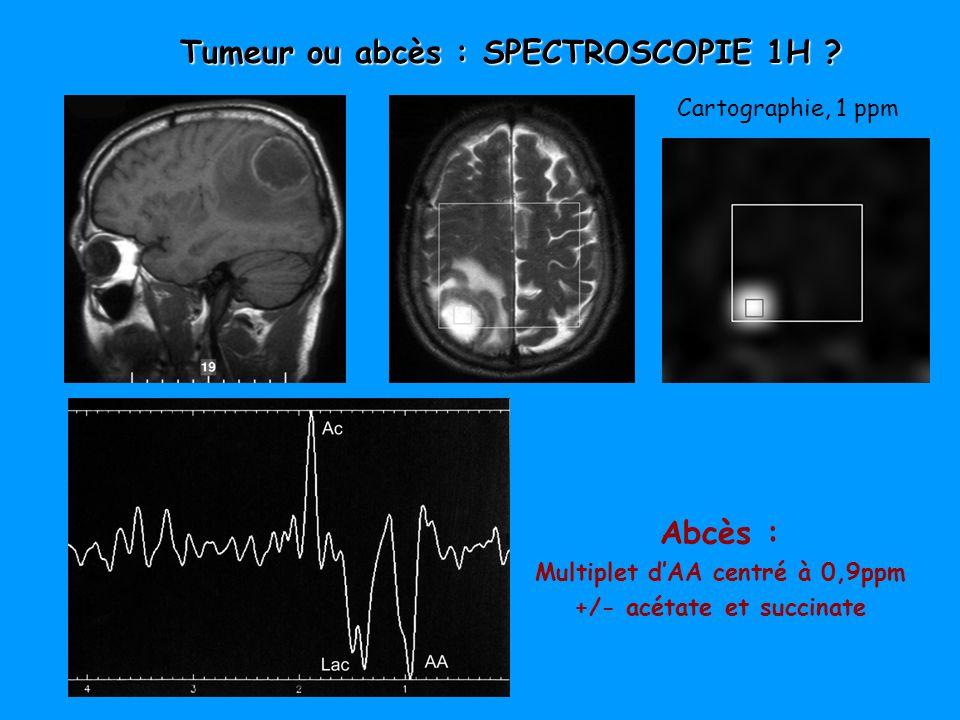 Abcès : Multiplet dAA centré à 0,9ppm +/- acétate et succinate Cartographie, 1 ppm Tumeur ou abcès : SPECTROSCOPIE 1H ?