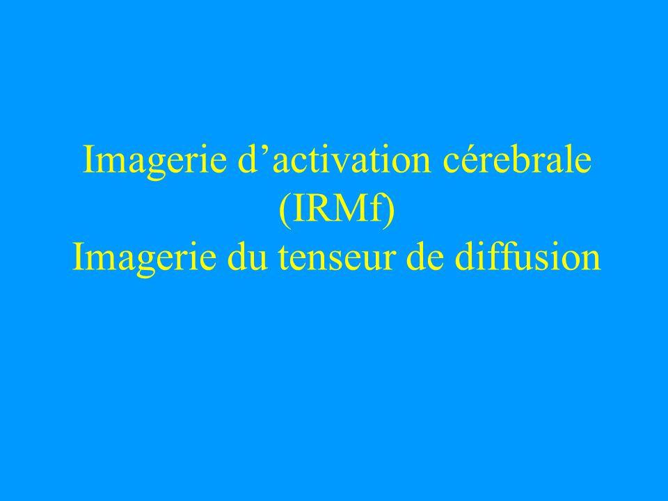 Imagerie dactivation cérebrale (IRMf) Imagerie du tenseur de diffusion