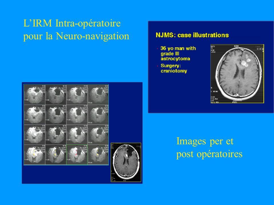 LIRM Intra-opératoire pour la Neuro-navigation Images per et post opératoires