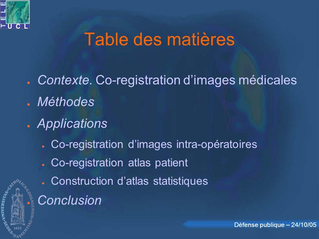 Défense publique – 24/10/05 Information mutuelle (2) Applications aux images : entropie = mesure dalignement Information mutuelle : comparaison dincertitudes a priori et posteriori H(M2|F) = 0 H(M1|F) = 0 MI = H(M) - H(M|F) contexte || méthodes || applications || conclusion