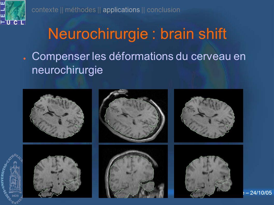 Défense publique – 24/10/05 Neurochirurgie : brain shift Compenser les déformations du cerveau en neurochirurgie contexte    méthodes    applications    conclusion