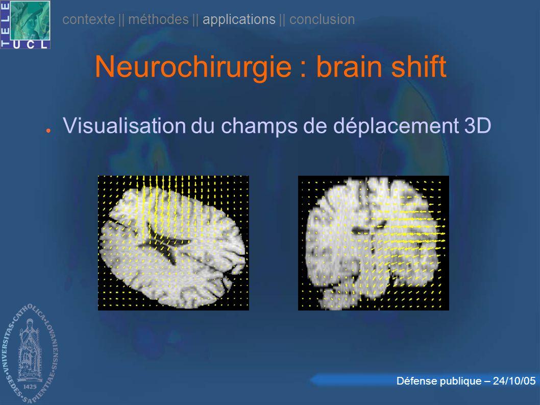 Défense publique – 24/10/05 Neurochirurgie : brain shift Visualisation du champs de déplacement 3D contexte    méthodes    applications    conclusion
