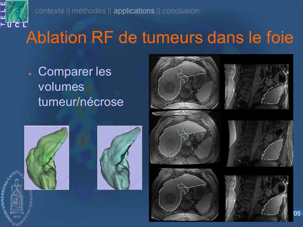 Défense publique – 24/10/05 Ablation RF de tumeurs dans le foie Comparer les volumes tumeur/nécrose contexte    méthodes    applications    conclusion