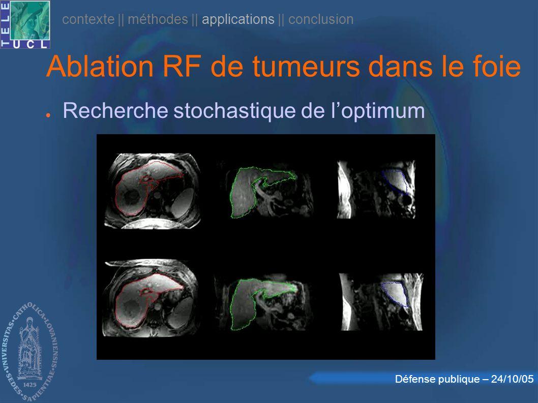 Défense publique – 24/10/05 contexte || méthodes || applications || conclusion Recherche stochastique de loptimum Ablation RF de tumeurs dans le foie