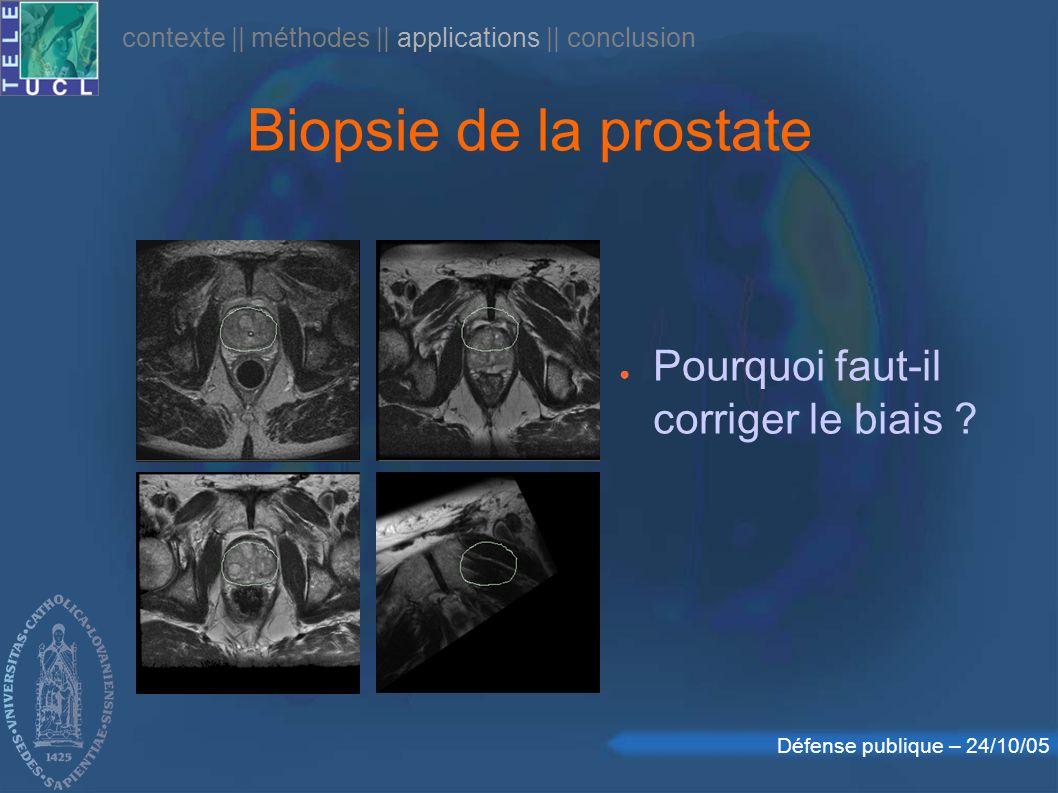Défense publique – 24/10/05 Biopsie de la prostate Pourquoi faut-il corriger le biais ? contexte || méthodes || applications || conclusion