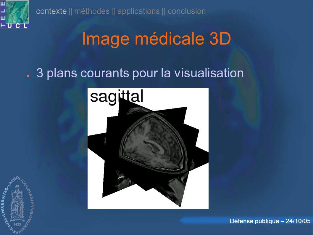 Défense publique – 24/10/05 Image médicale 3D 3 plans courants pour la visualisation contexte    méthodes    applications    conclusion