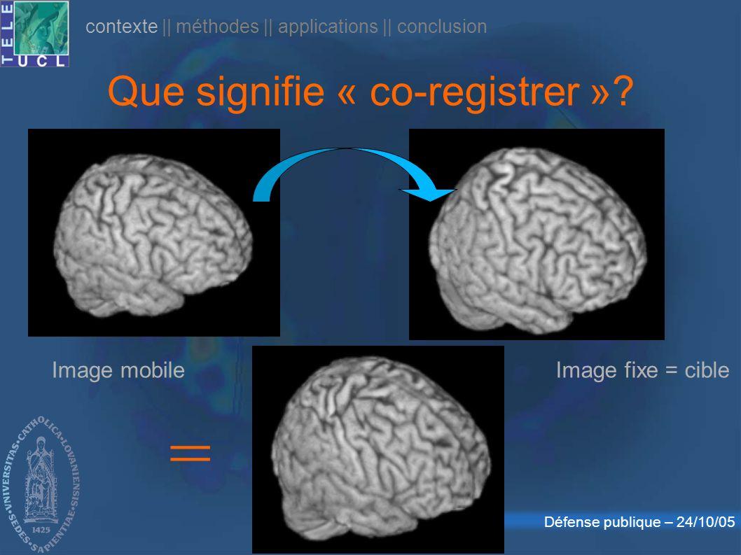 Défense publique – 24/10/05 Que signifie « co-registrer »? contexte || méthodes || applications || conclusion = Image fixe = cibleImage mobile