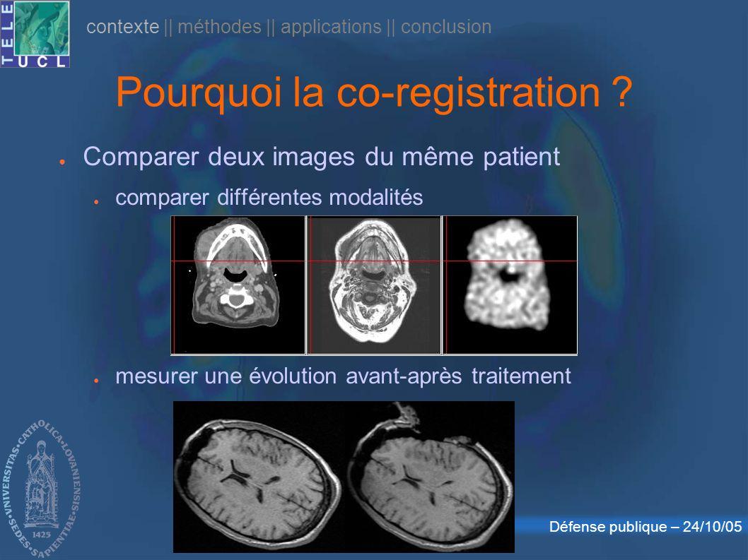 Défense publique – 24/10/05 Pourquoi la co-registration ? Comparer deux images du même patient comparer différentes modalités mesurer une évolution av