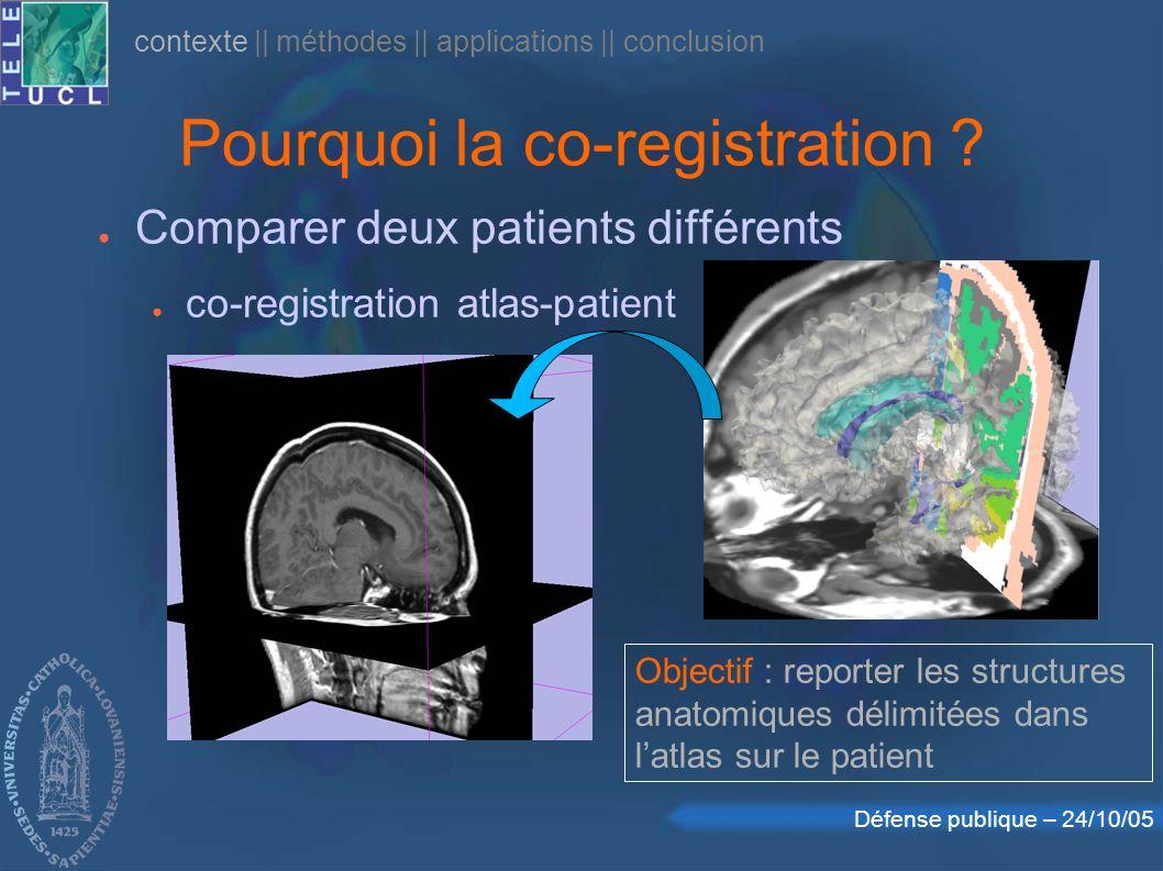 Défense publique – 24/10/05 Pourquoi la co-registration ? Comparer deux patients différents co-registration atlas-patient Objectif : reporter les stru